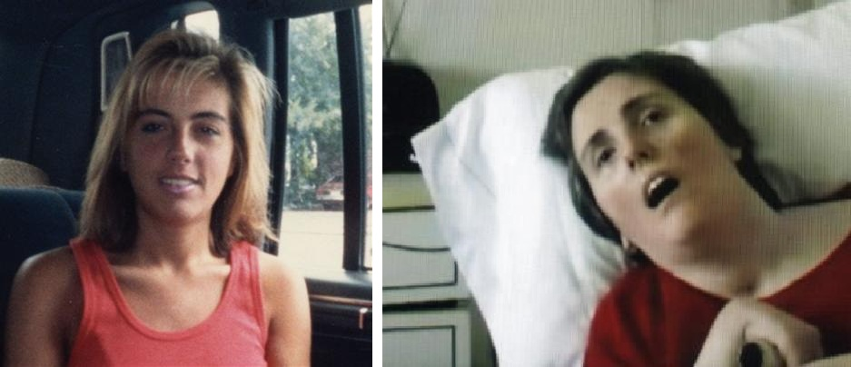 "Terri Schiavo, before and after. You may remember her from her ""right to live/die"" case, but Terri Schiavo had a heart attack caused by an electrolyte imbalance as a result of bulimia. The lack of oxygen to her brain left her brain dead."